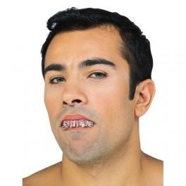Zuby rovnátka 6 2135 - 3 - Ru